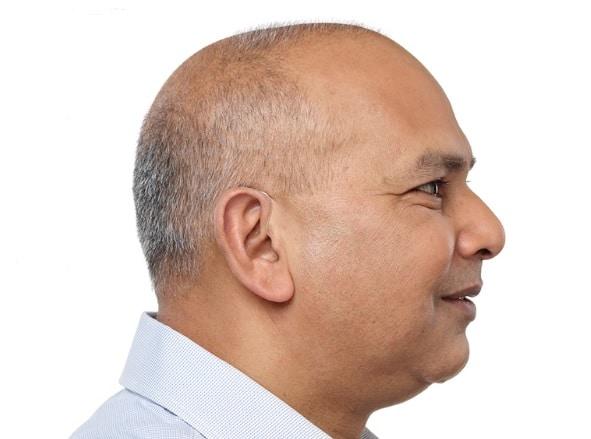 Homme qui porte un appareil auditif contour d'oreille invisible